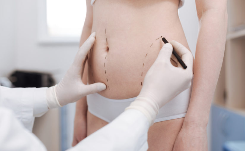 What does liposuction do? Maryland